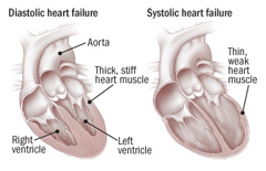 Illustration of two types of heart failure