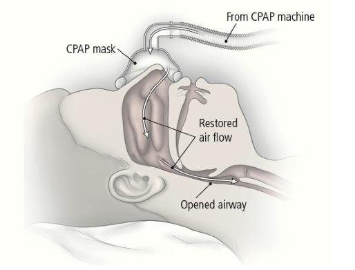 CPAP_machine_image