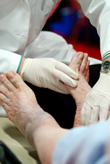 Diabetic Neuropathy The Agony Of Da Feet Harvard Health Blog Harvard Health Publishing