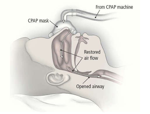 Image result for obstructive sleep apnea