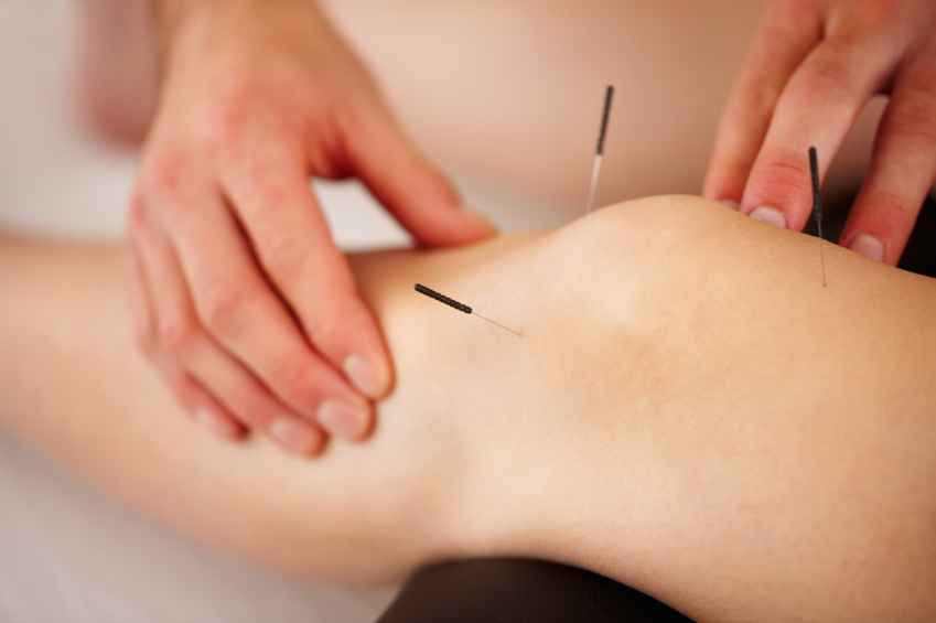 Acupuncture for knee arthritis fails one test but may still be worth