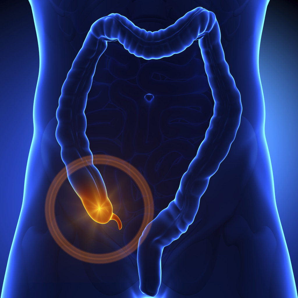 Surgery for appendicitis? Antibiotics alone may be enough