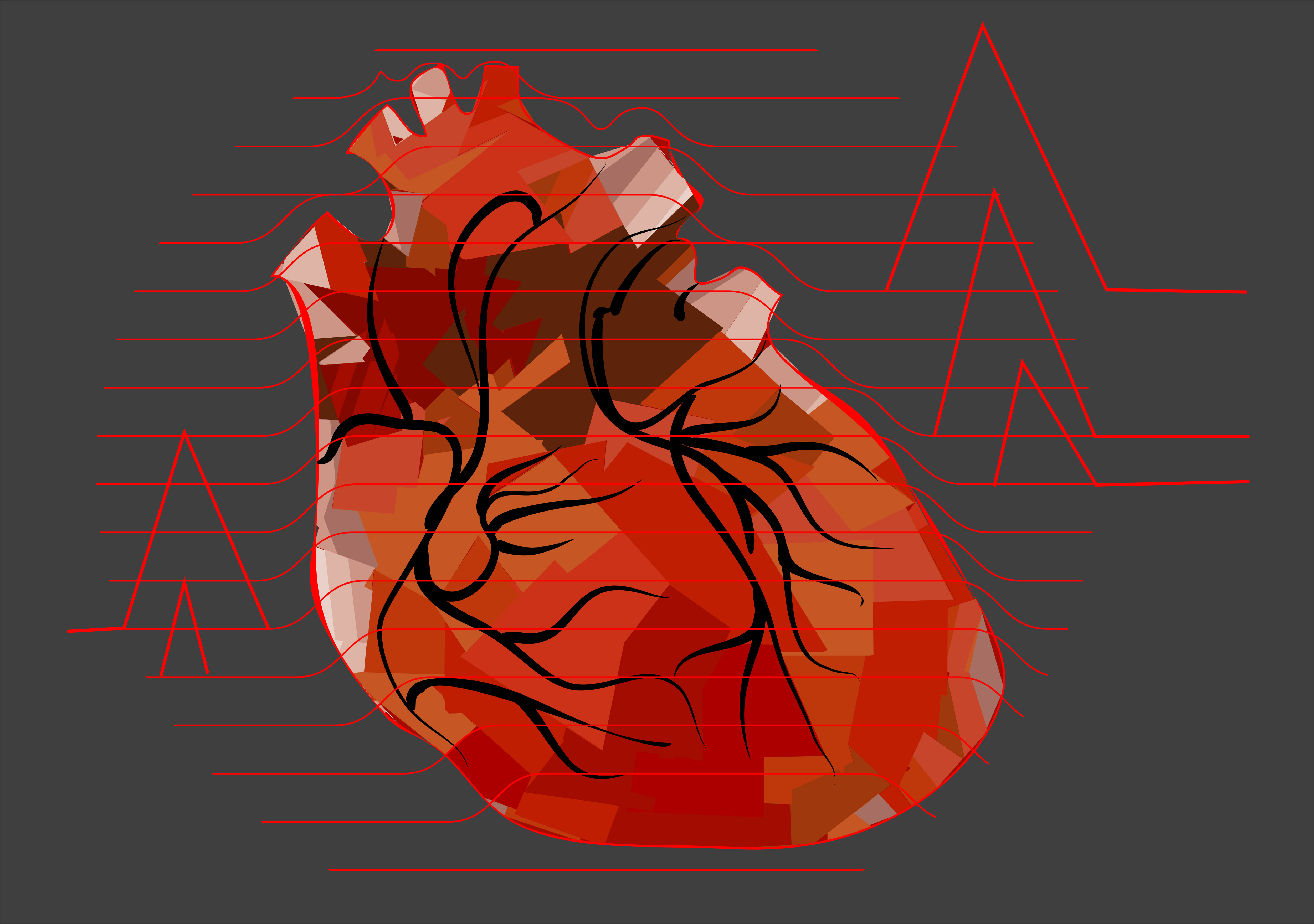 Silent heart attacks: Much more common than we thought in both men ...
