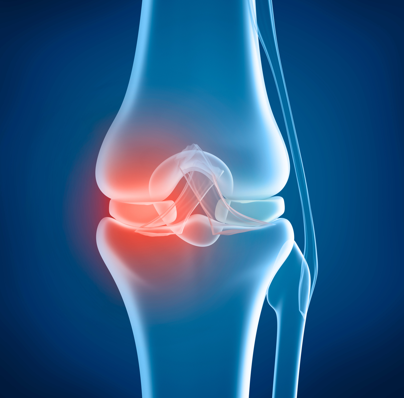 d449cb9d85 Knee replacement: Life changing or a disappointment? - Harvard ...