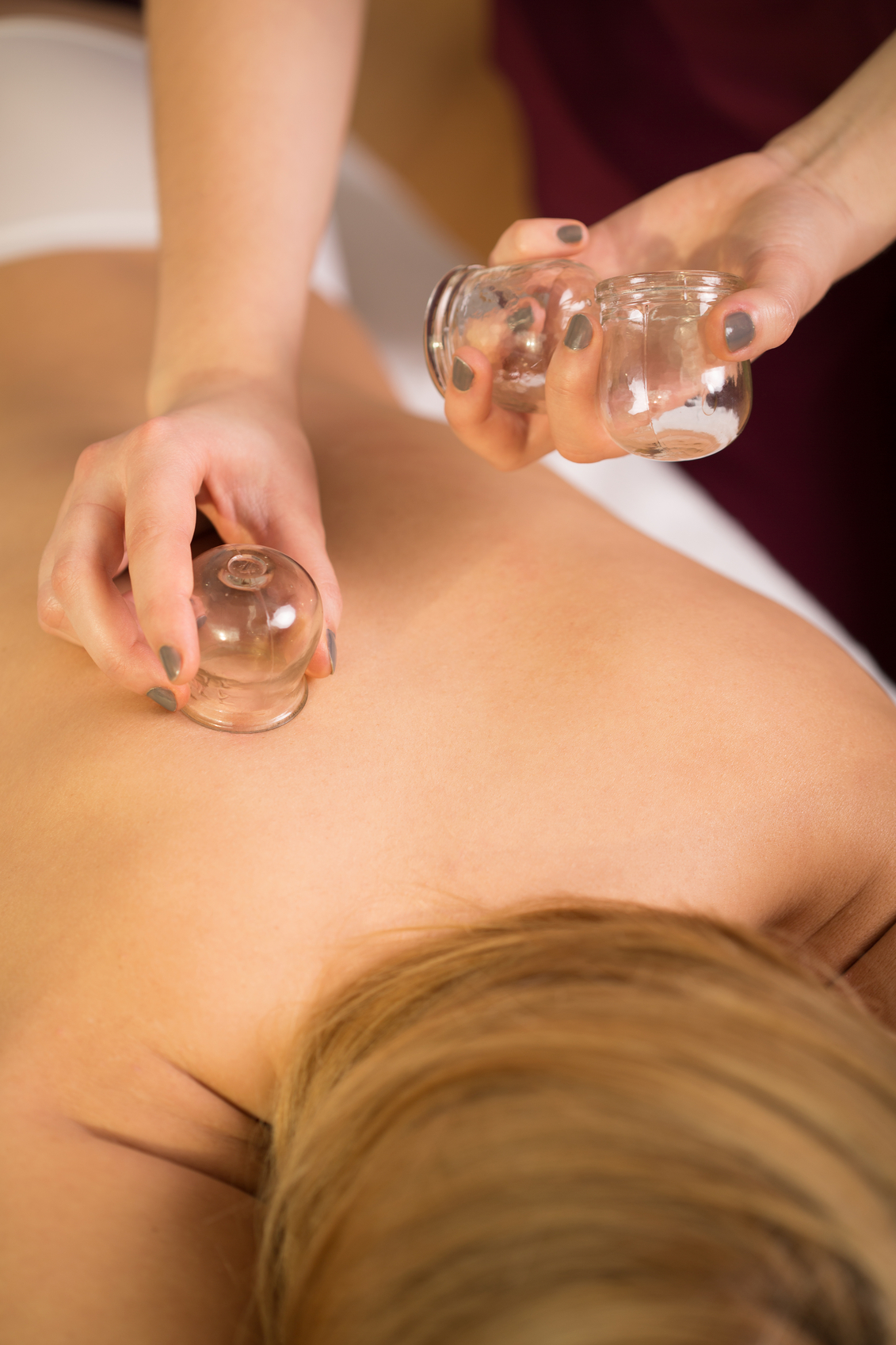 What exactly is cupping? - Harvard Health Blog - Harvard Health