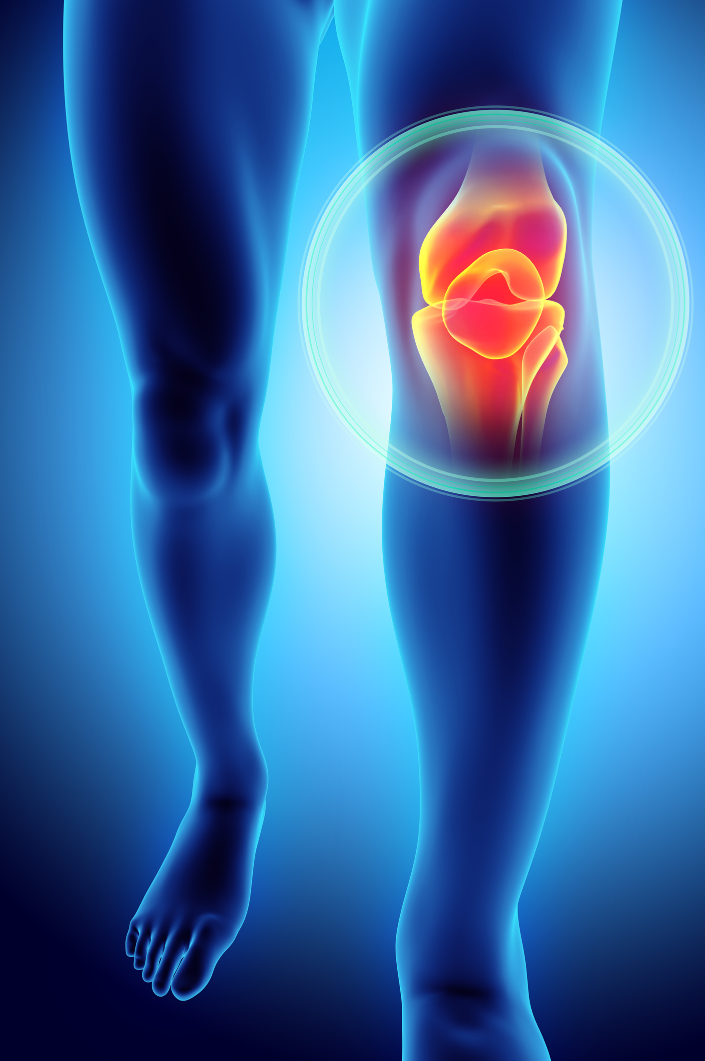 Can You Virtually Improve Your Knee Pain Harvard Health Blog