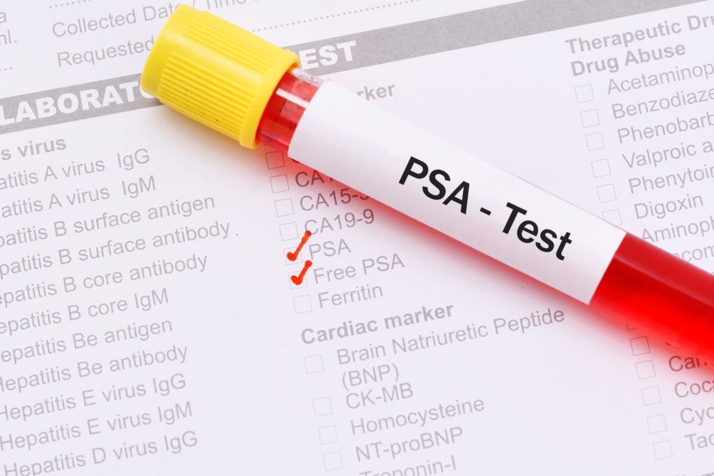 To PSA test or not to PSA test: That is the discussion