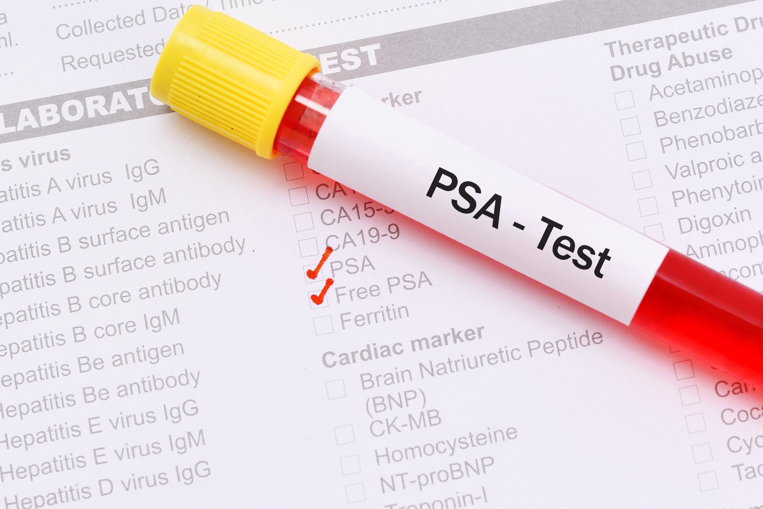 What is the difference between PSA and free PSA? - Harvard Health Blog -  Harvard Health Publishing