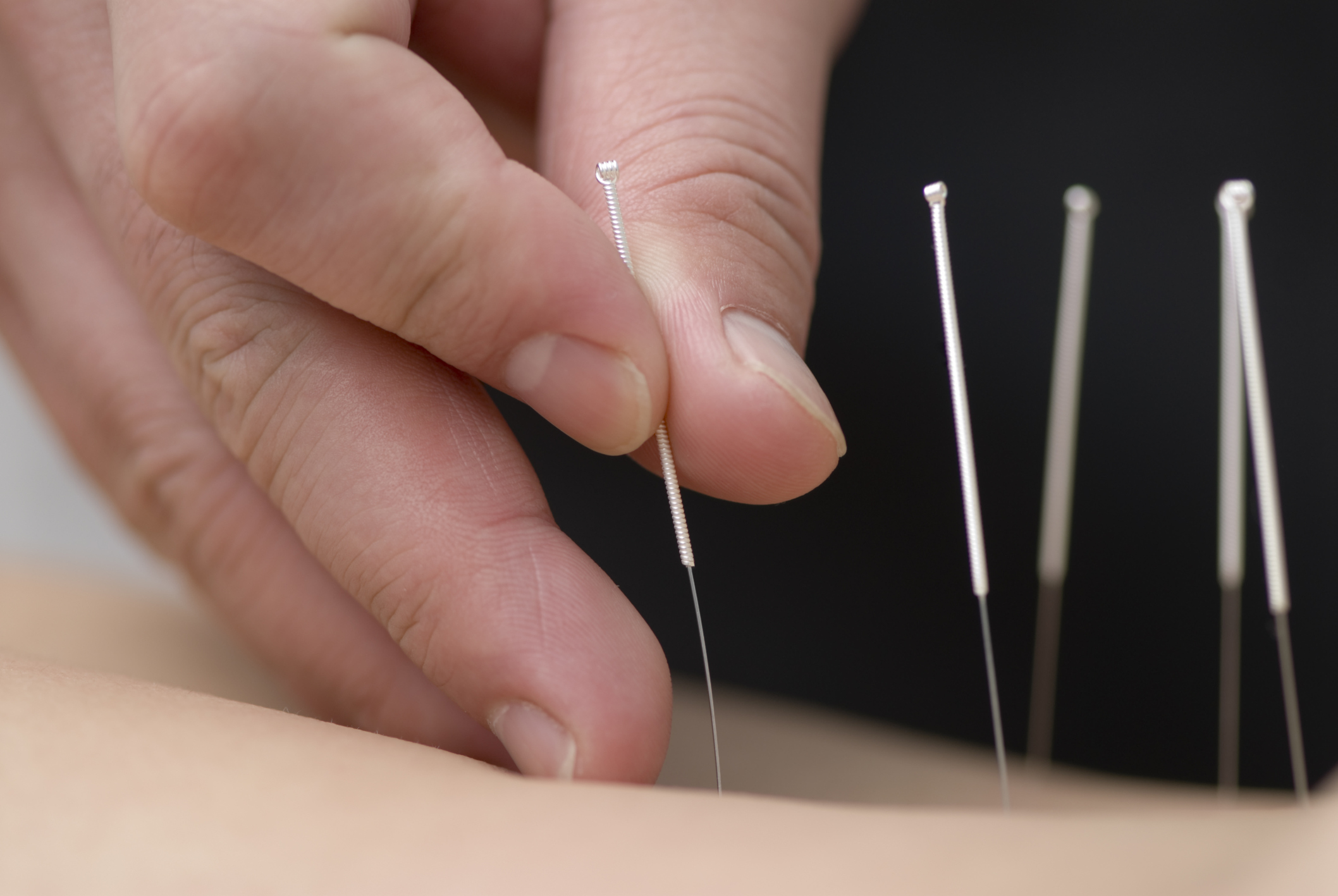 Acupuncture Points For Stress