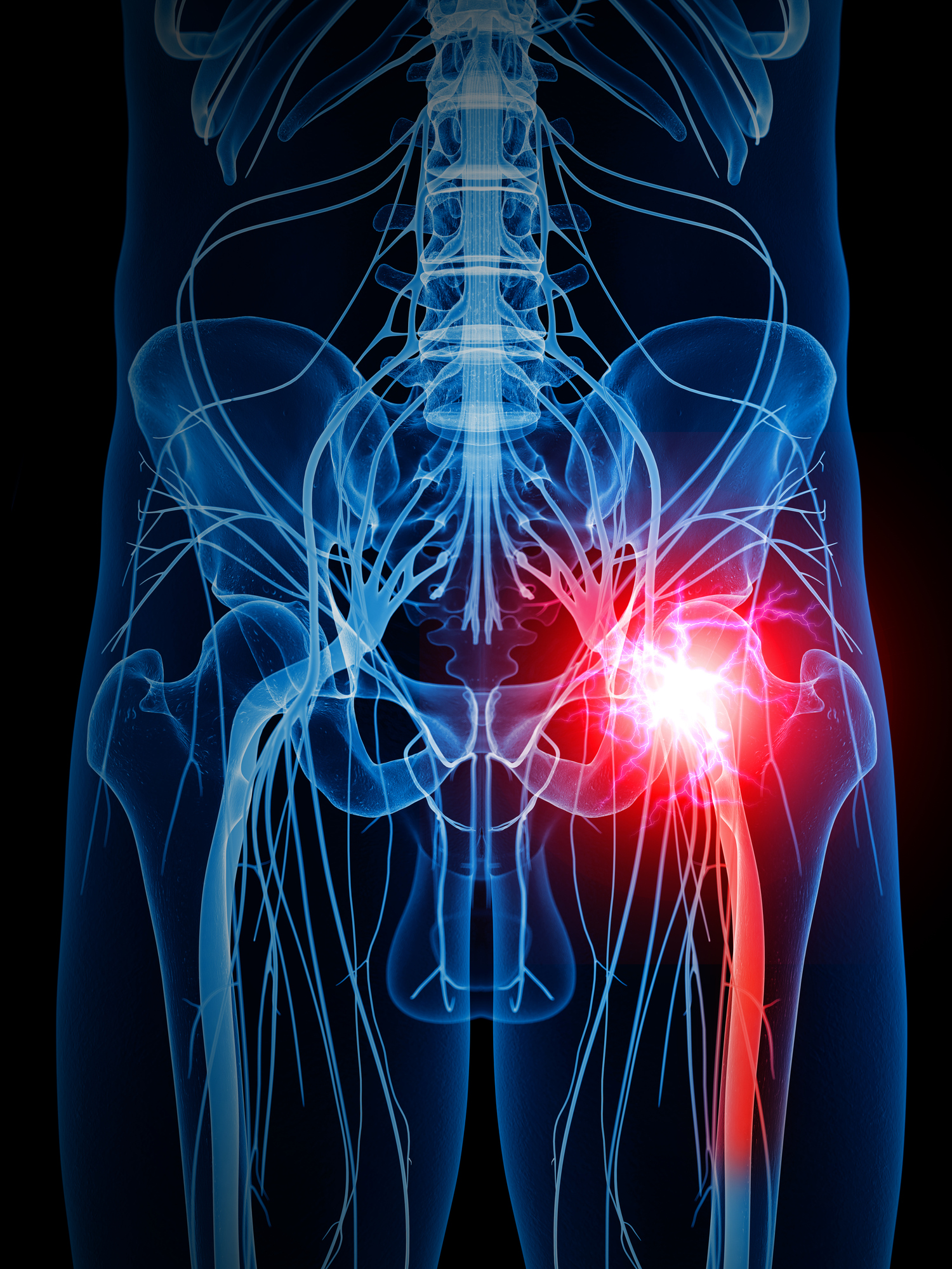Taming The Pain Of Sciatica For Most People Time Heals And Less Is