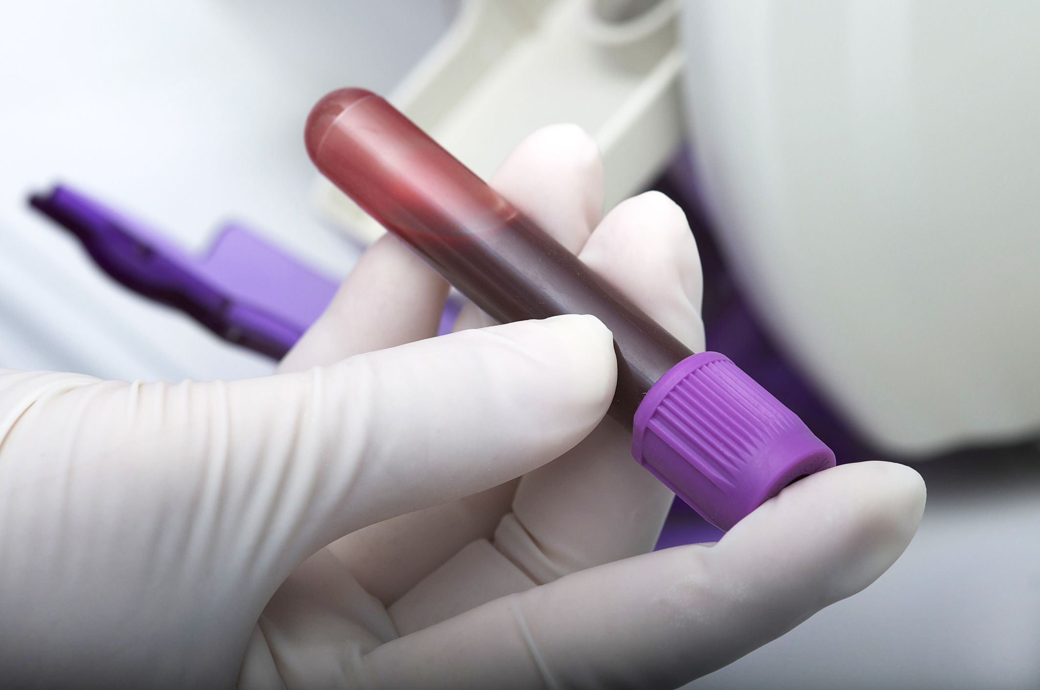 Blood tests to guide prostate cancer drug choice