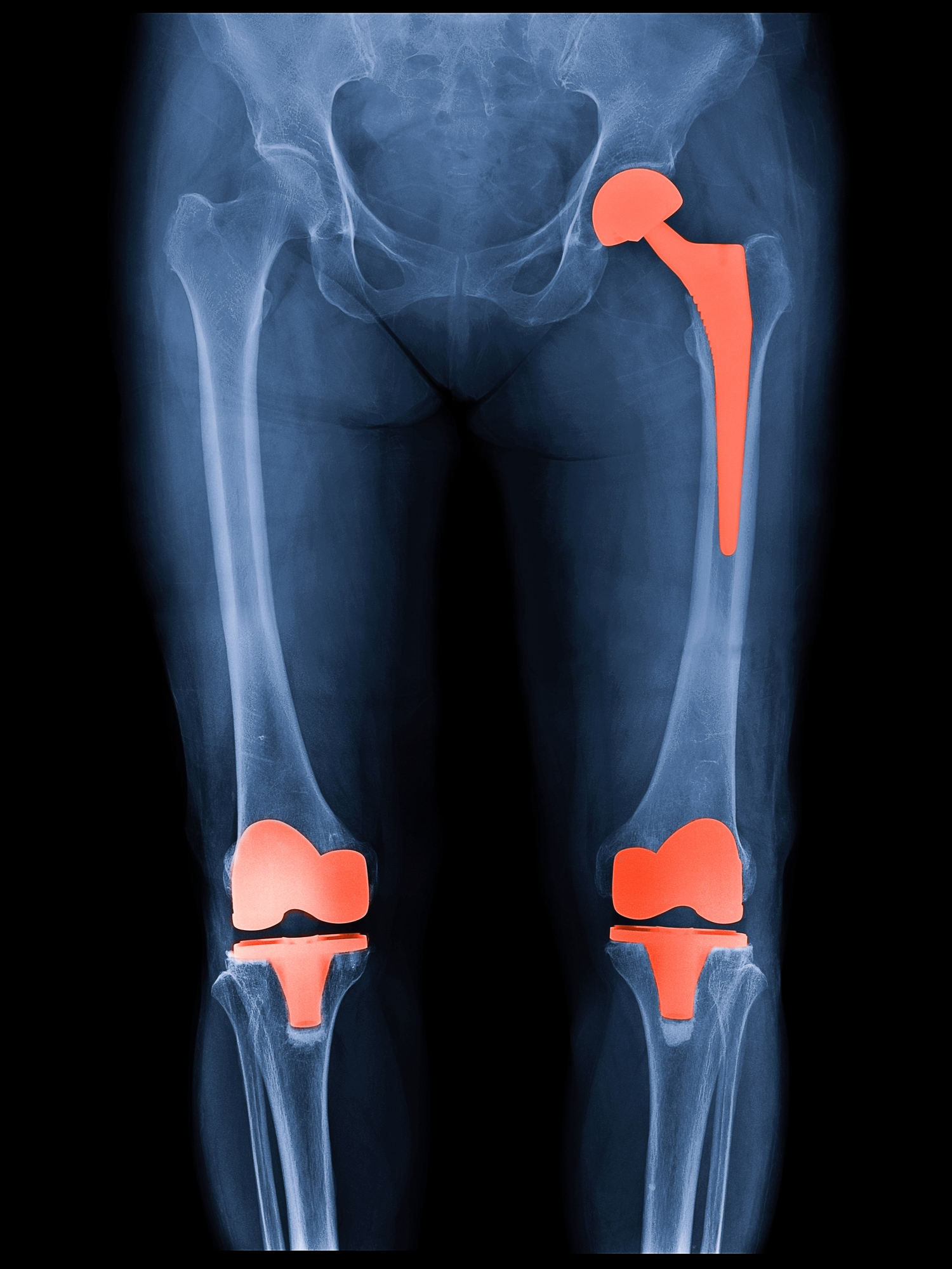 Hip Replacement Surgery >> How Long Will My Hip Or Knee Replacement Last Harvard