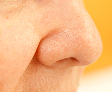 Smell disorders: When your sense of smell goes astray