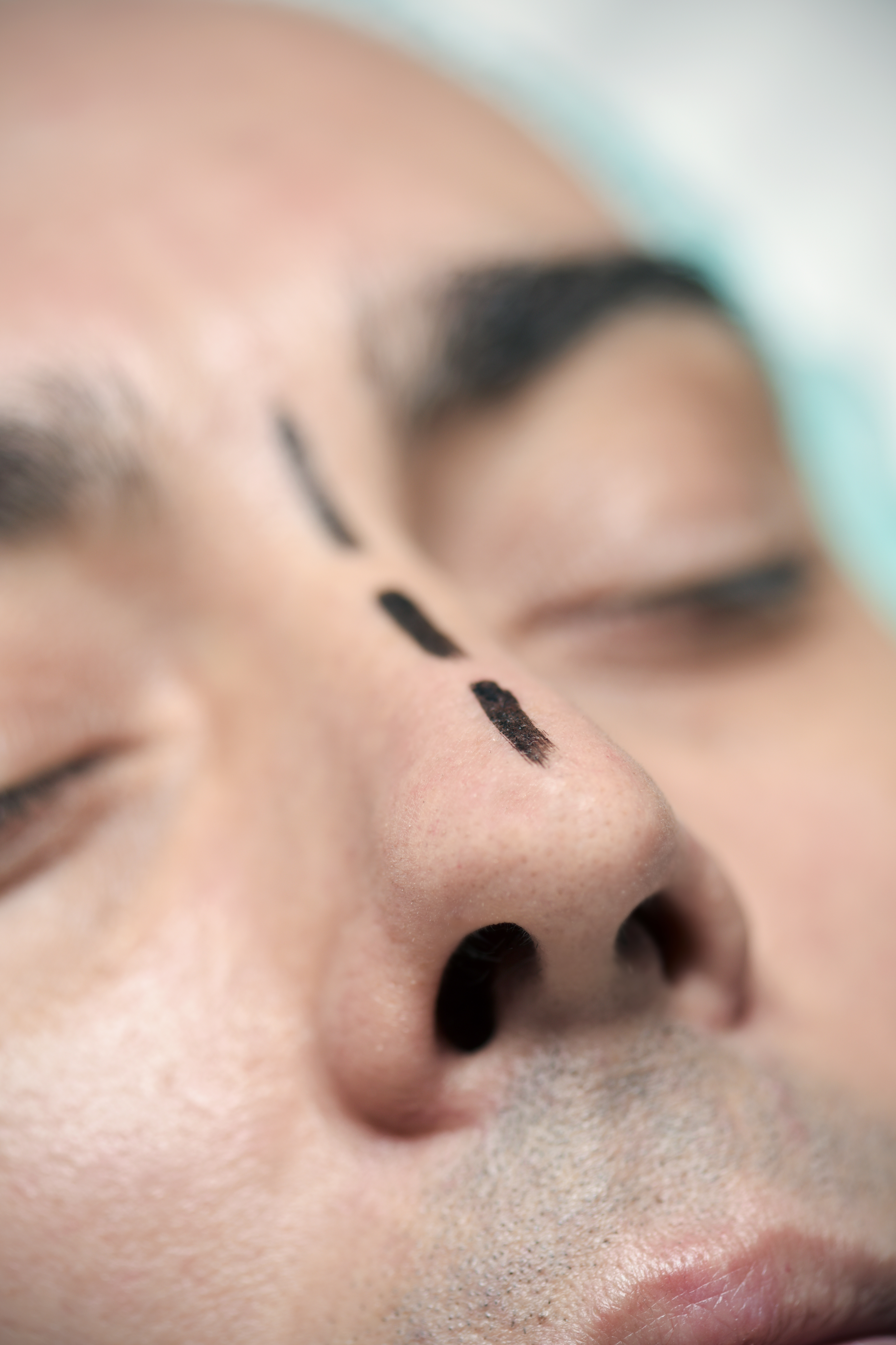 Patient's face marked for rhinoplasty