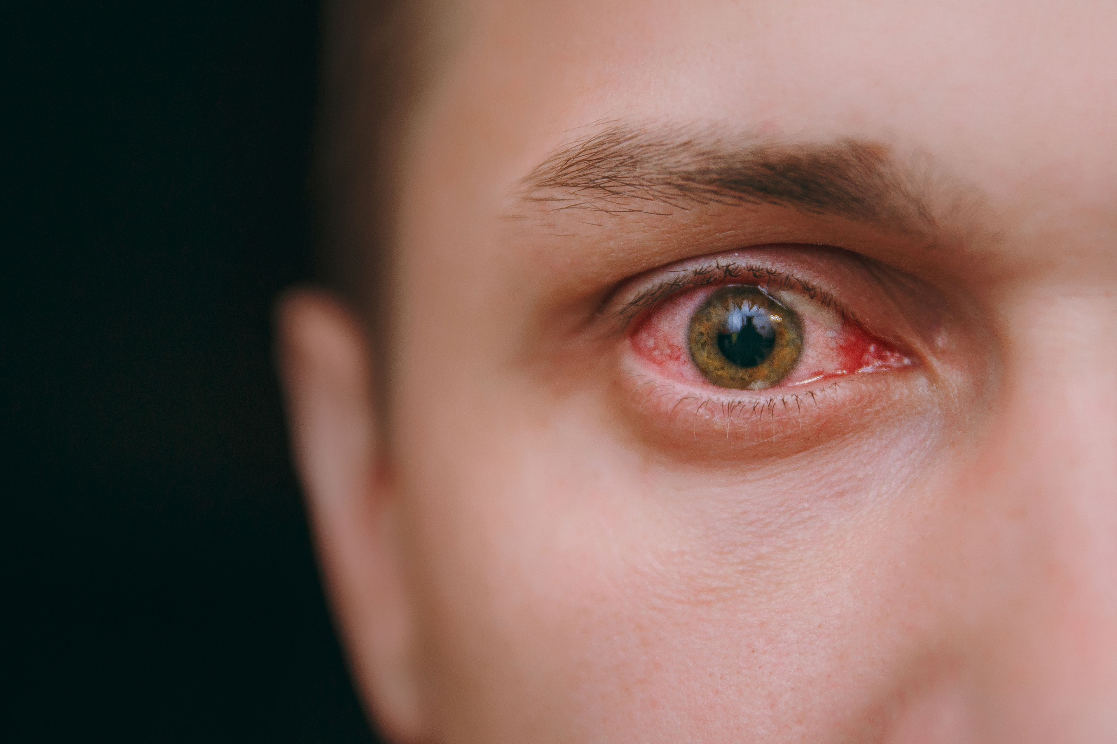 Herpes infection of the cornea - Harvard Health Blog - Harvard Health