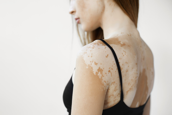 Vitiligo: More than skin deep - Harvard Health Blog - Harvard ...