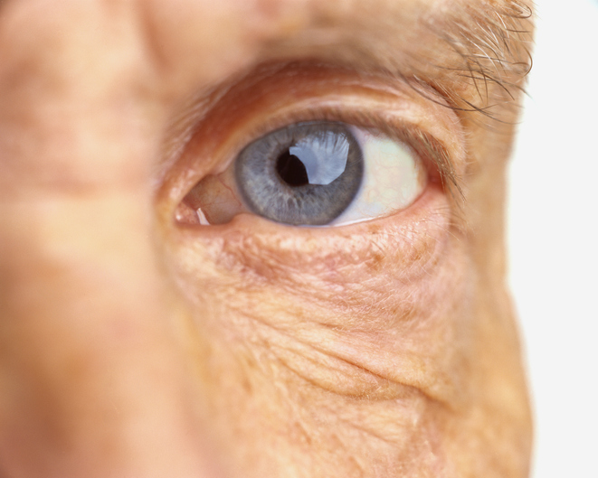 Diabetic retinopathy: Understanding diabetes-related eye disease and vision loss