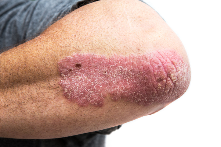 Psoriasis and cancer: What's the link?