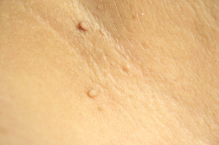 Skin tag removal: Optional but effective - Harvard Health Blog - Harvard  Health Publishing