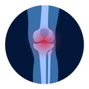 Arthritis in knee joint